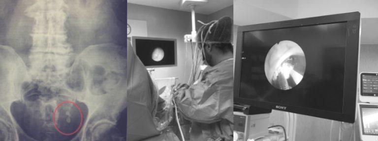 Cirugía láser de piedras o cálculos renales