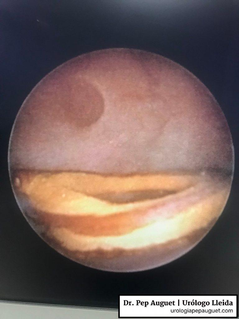 Imagen endoscopica de litiasis renal con forma de anillo; posiblemente se haya formado tras poner un catéter doble J que se ha calcificado parcialmente.