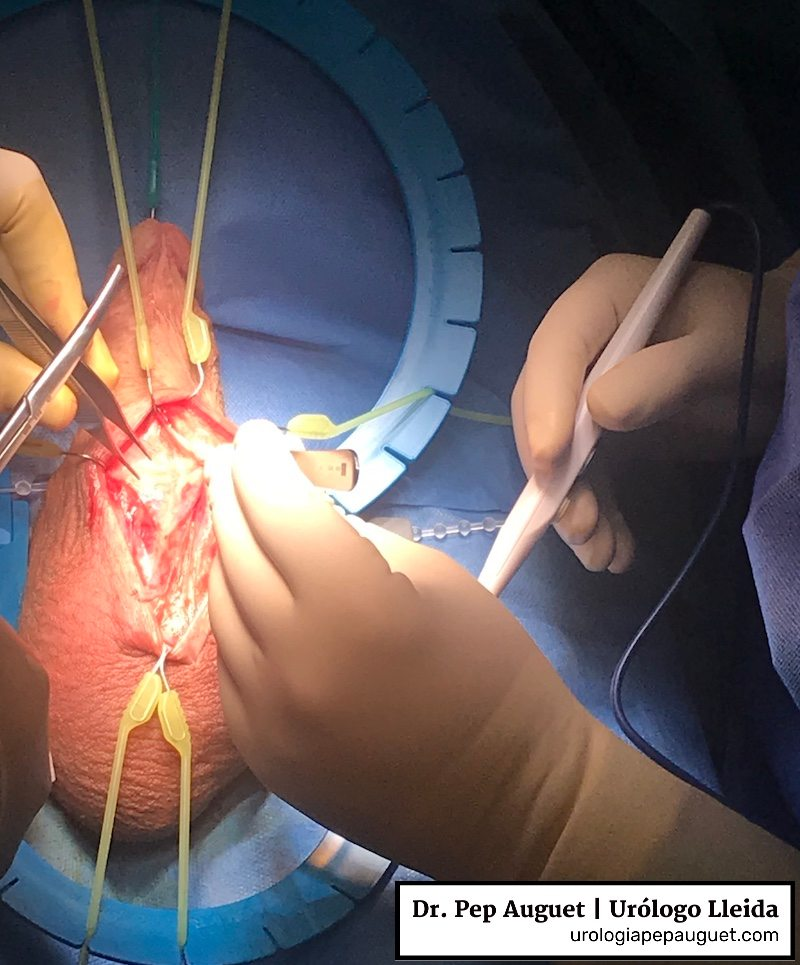 Cirugía protésica. Implante de prótesis de pene tipo AMS 700.
