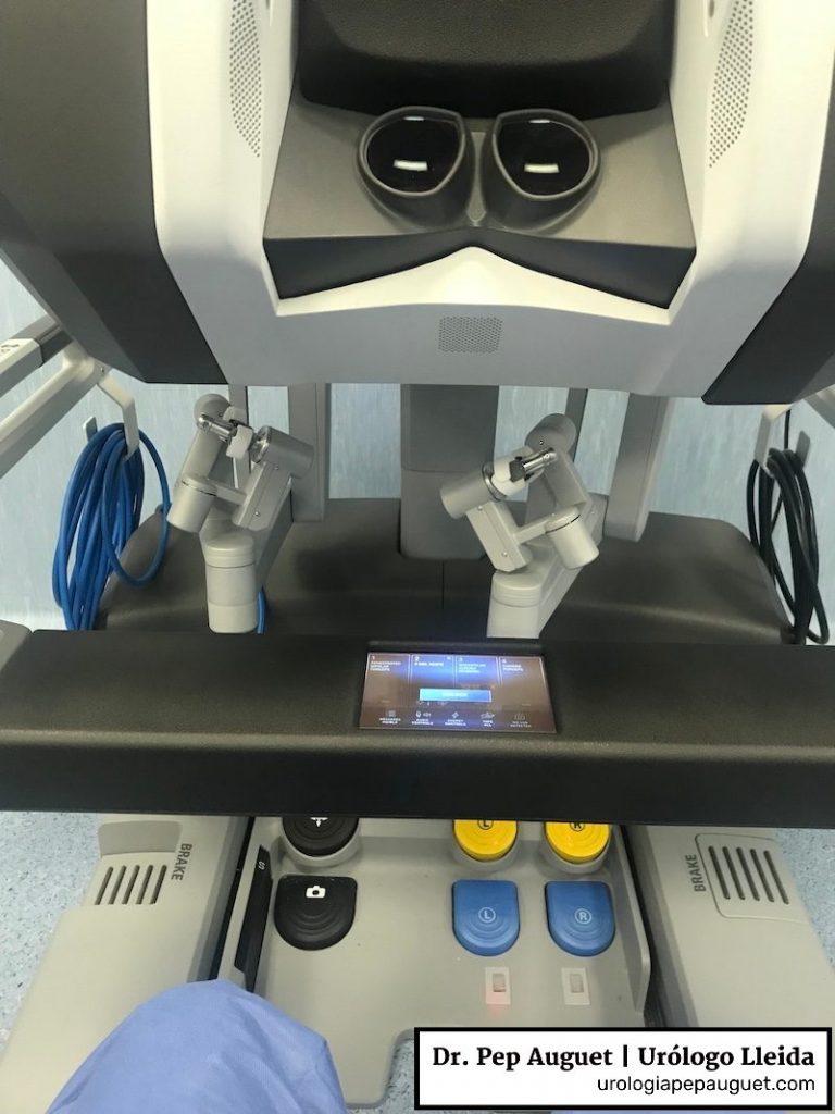 Consola y visor del Robot Da Vinci modelo Xi del hospital Arnau de Vilanova de Lleida